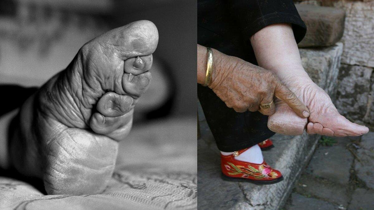 Последствия бинтования ног в Китае. Фото: Джо Фаррелл