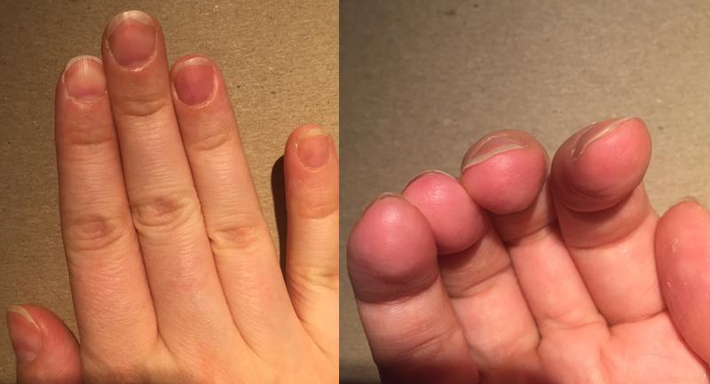 Как слазят ногти