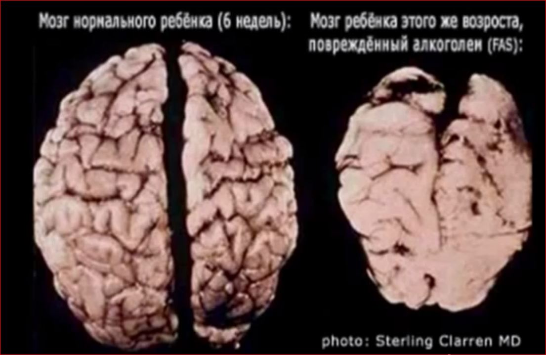 Мозг ребенка 1