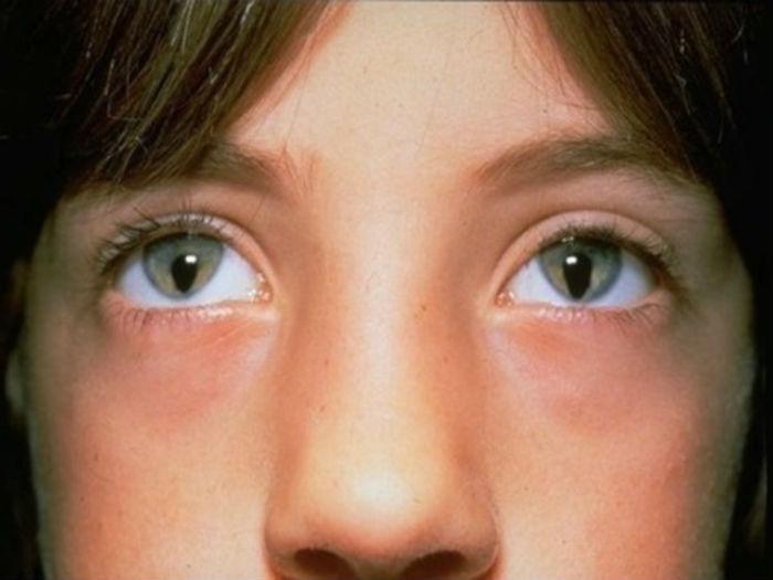 Синдром кошачьего глаза
