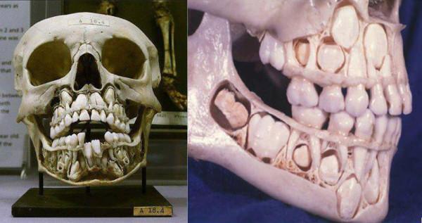 Calavera-niño-dientes-de-leche