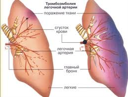 Острый тромбоз артерий симптомы