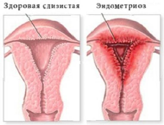 Эндометриоз - мифы и реальность: samoshkin_alex2