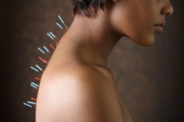 Остеохондроз грудного отдела позвоночника иглоукалывание