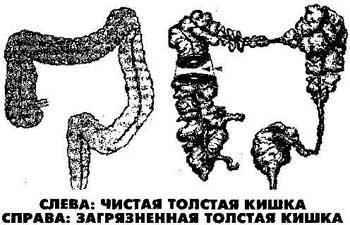 ochistka-kishechnika_2