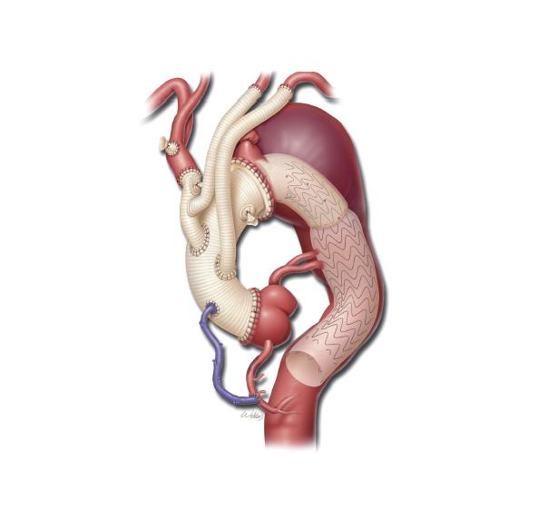 Кальциноз аорты как лечить народными средствами