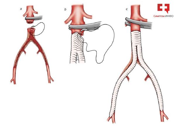 Стоимость шунтов для аорто бедренного шунтирования