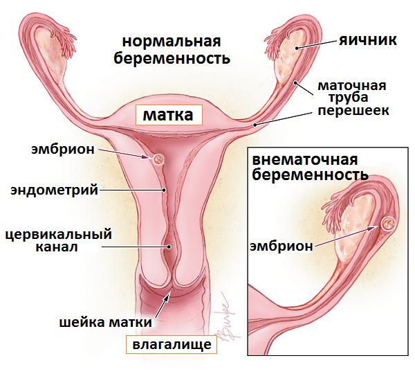 Сильная боль в пояснице на 28 неделе беременности