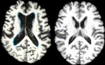 4260_Vitamin_B12_and_brain_loss_both