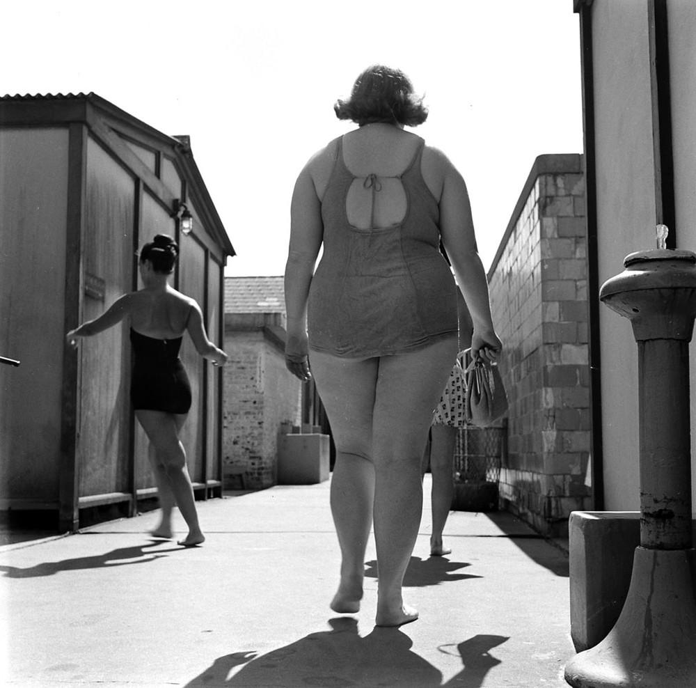 Obesity01
