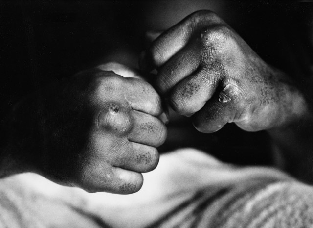 The Sports Show; Gordon Parks; Close-up of Muhammad Ali's fists, his knuckles cut, after match against Henry Cooper; 1966