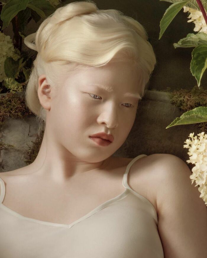 Meet-Chinese-Xueli-Abbing-the-albino-abandoned-when-she-was-a-baby-who-became-a-Vogue-model-6090f7923c9d4__700 (1).jpg