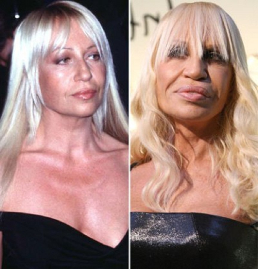 Donatella-Versace-Plastic-Surgery-Before-and-After-Lip-Augmentation