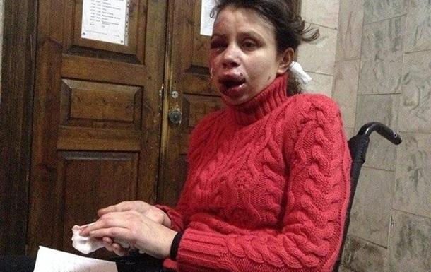 В Украине начали избивать активистов Евромайдана 1335521