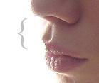губной желобок aka philtrum