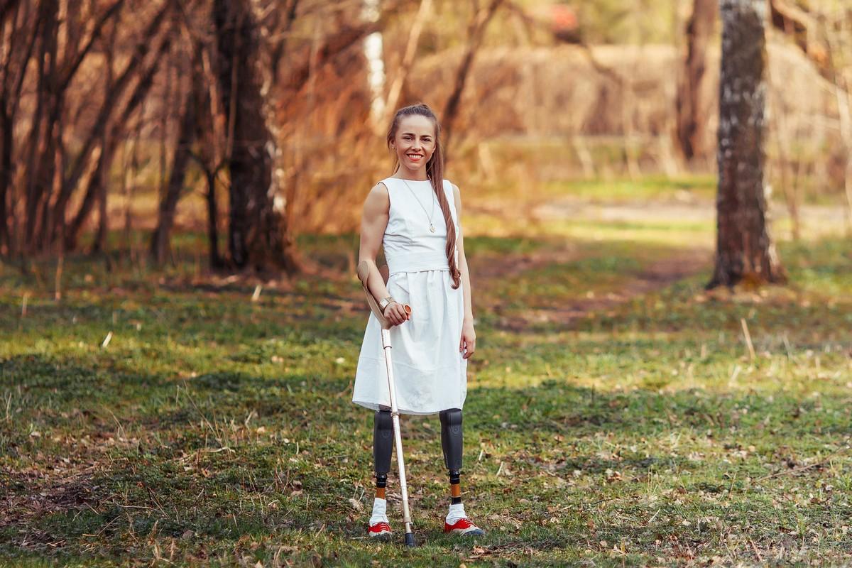 Девушке ампутировали ноги 17 фотография