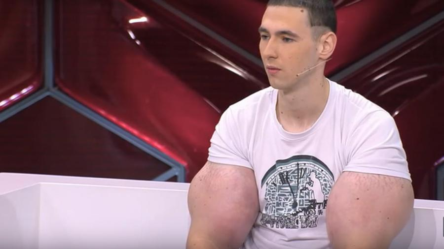 Кирилл «Руки-базуки» лишился рук