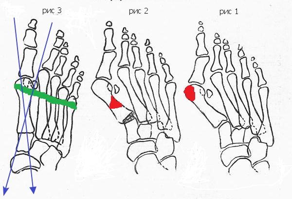 Косточки на стопах или шишки на ногах — Стопа — Лечение ...