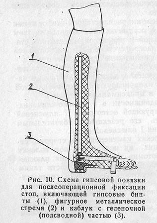 Косточка на большом пальце ноги. Реабилитация