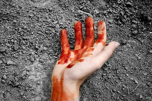 bloodyhand2