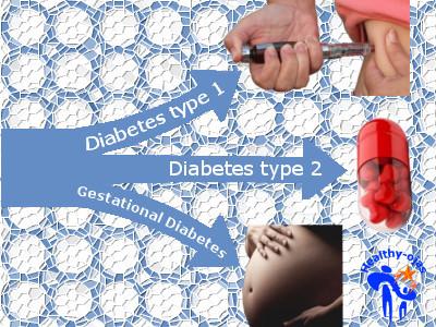 diabetes-types