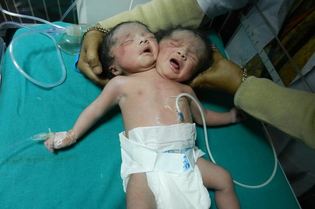 £££conjoined-twins-3238347