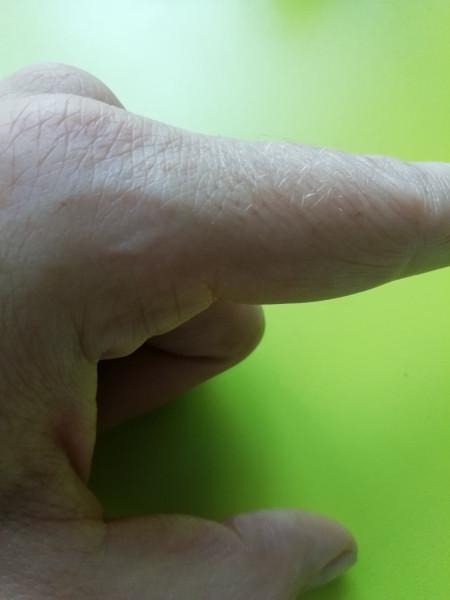 шрам на указательном пальце левой руки