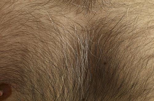 Волосы на лобке у девочек фото