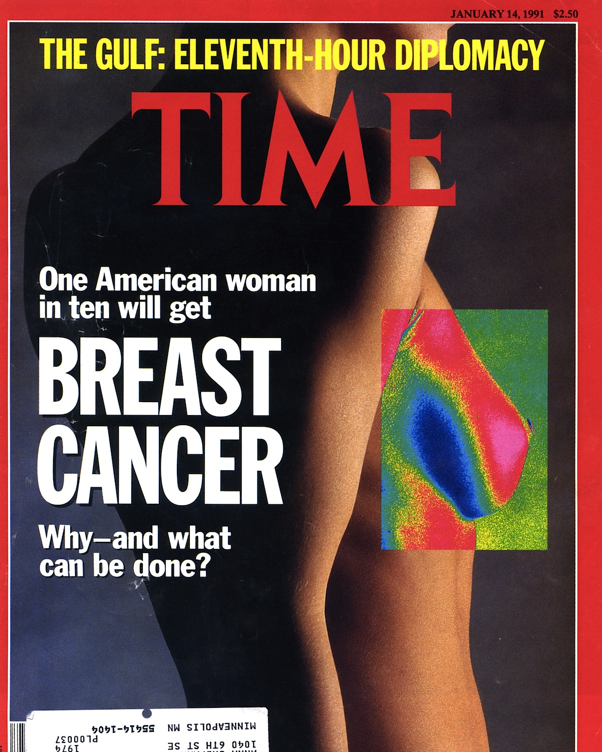 Breast Cancer007