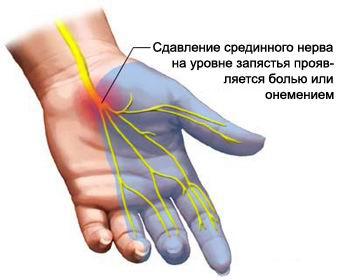 боли в руках 1