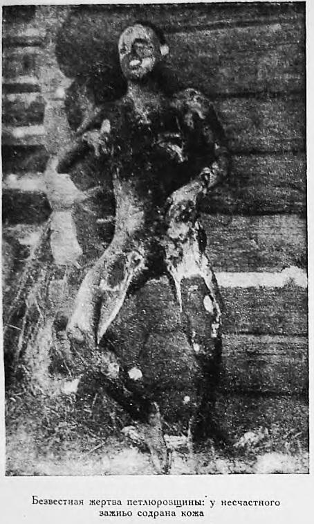 Жертва петлюровцев (содрана кожа) 3