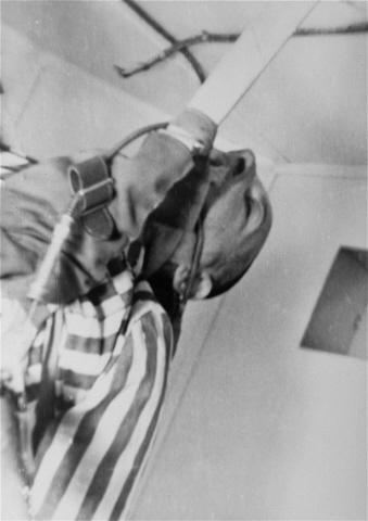 Пленный - жертва мед. эксперимента в Дахау 2