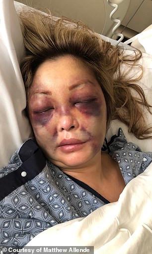 избитая-медсестра