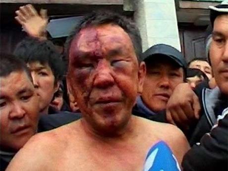 За последние три месяца каждый день в Украине в дорожных авариях гибли шесть человек, - Супрун - Цензор.НЕТ 1549
