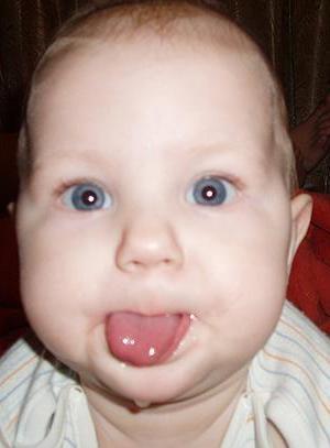 Почему у 3 месячного ребенка текут слюни сильно