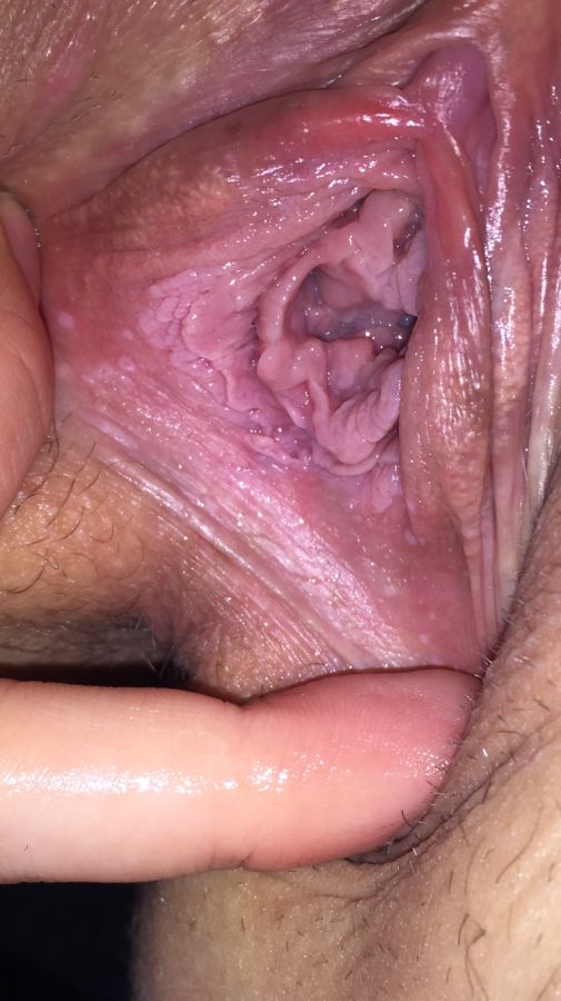 Lump inside back of vagina