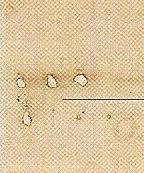 Фрагмент 10. Дефекты на Плащанице в результате пожаров. Последний из них имел место в 1997 году.