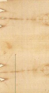 Фрагмент 1. Видна рана на ступне от гвоздя.