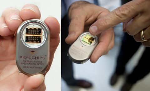Чип-имплантат для инъекций впервые испытан на людях