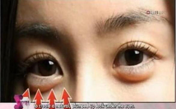 мешки-под-глазами-мода-у-кореянок2