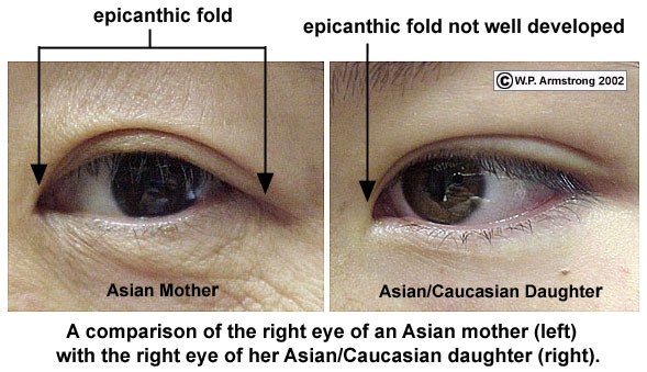 epicanthic+fold