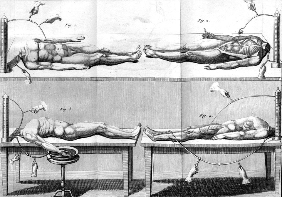 Experiments with headless cadavers 1804