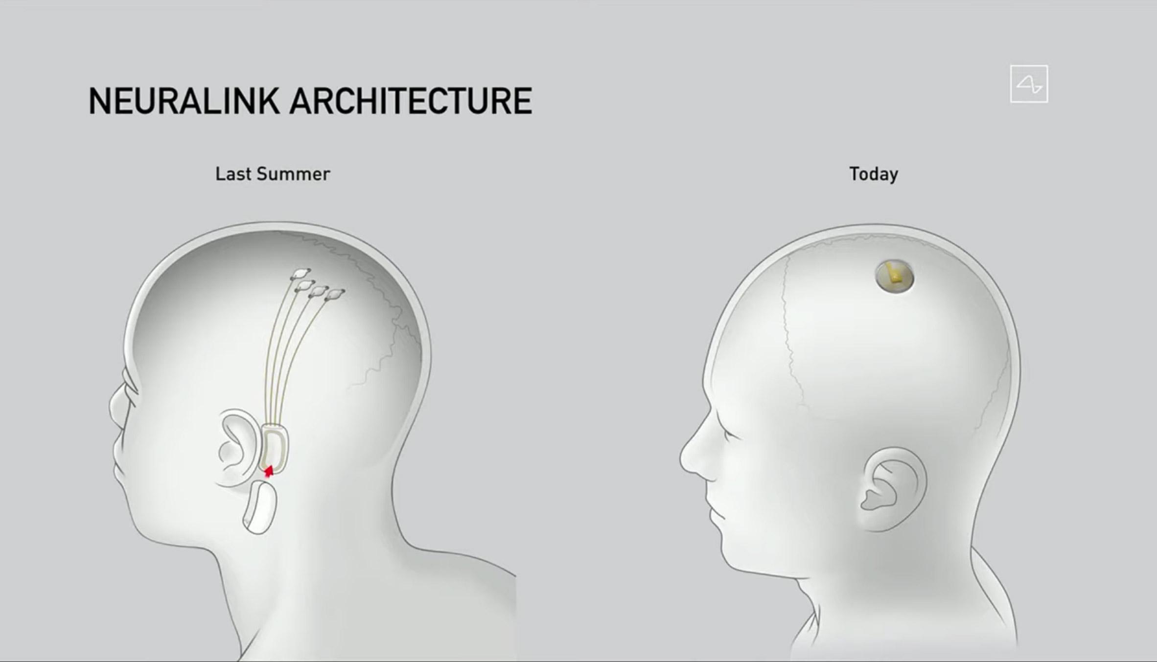 """Neuralynx был упрощен от устройства за ухом до устройства на верхней части черепа. Маск пояснил, что за последний год компания """"кардинально упростила"""" носимое устройство. Предыдущая конструкция состояла из бобовидного устройства, которое располагалось за ухом.""""Это было сложно, и вы все равно не выглядели бы совершенно нормально; у вас была бы вещь за ухом"""", - сказал он о старом дизайне. - Итак, мы упростили это до чего-то размером с большую монету, и это входит в ваш череп.""""Устройство в мозге может позволить людям с неврологическими расстройствами управлять технологиями, такими как телефоны или компьютеры, своими мыслями. Маск также утверждает, что способен решать неврологические расстройства от потери памяти, слуха и слепоты до паралича, депрессии и повреждения мозга."""