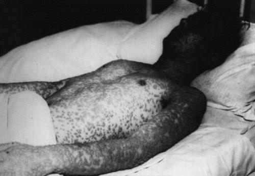 smallpox-1qs0sml-500x345