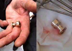 пуля найденная на майдане и извлеченная из активиста-1