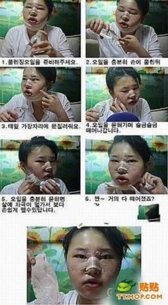 hirurgiya6