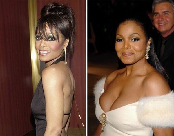 celebrities_before_and_after_boob_jobs_11