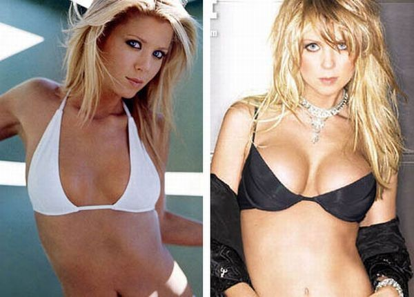 celebrities_before_and_after_boob_jobs_16