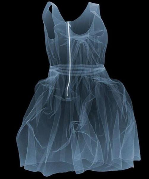 X-ray_04