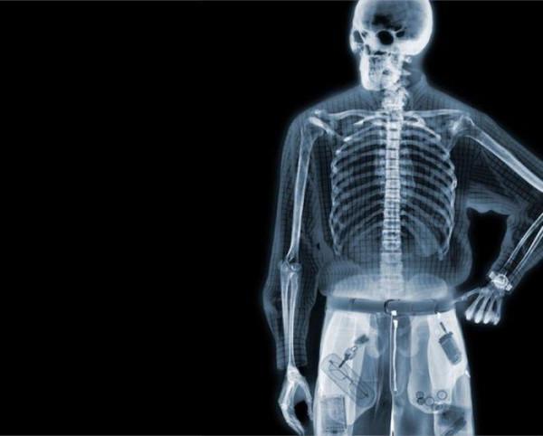 X-ray_33